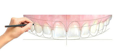 gülüş tsarımı estetik diş burs nilüfer özlüce diş hekimi arman kömür