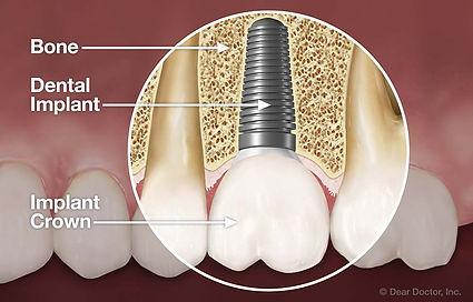diş implantı nedir nilüfer bursa diş hekimi arman kömür