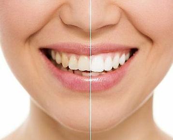 bleaching diş beyazlatma özlüce