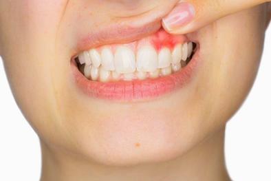 gingivitis diş eti kanaması bursa nilüfer özlüce diş hekimi arman kömür