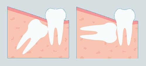 doktor arman kömür gömülü yirmilik diş çekimi yirmiyaş diş ağrısı