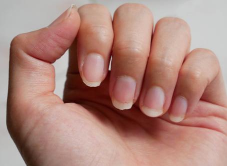 ¿Por qué se dañan las uñas? Causas comunes y soluciones fáciles para las uñas dañadas
