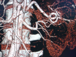 Renal artery - Left