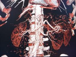 Renal arteriogram