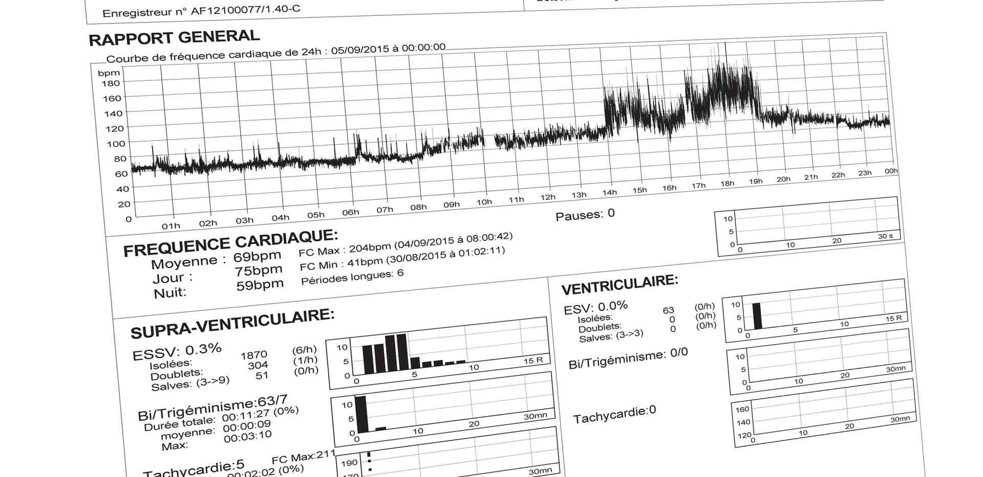 Rapport Holter2.jpg