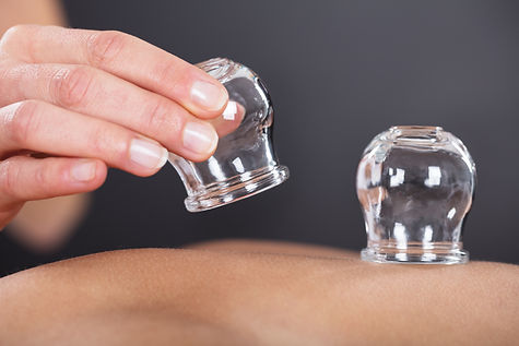 Close-up Of A Therapist Giving Cupping T