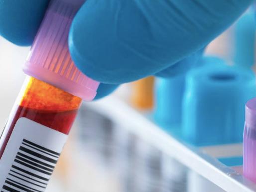 La importancia de los estudios de laboratorio.