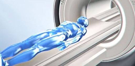 ¿Qué se puede detectar con una resonancia magnética?