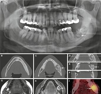 Implantologia a carico immediato, Implantologia computer guidata.
