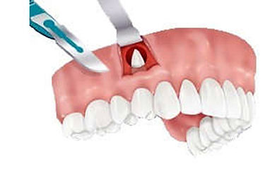Dentisti Albania. Apicectomie- Apice radicolare