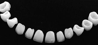Dentisti Albania. Corona-Zirconio