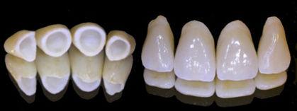 Dentisti Albania. Corona in ceramica integrale