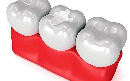 La sigillatura di solchi e fossette. Dentisti Albania