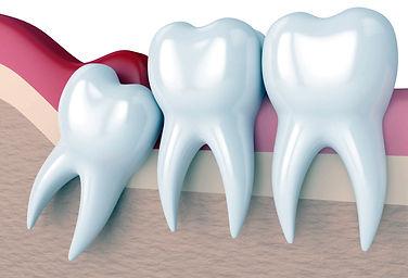 Dentisti Albania.Estrazione dente incluso. Chirurgia orale