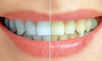 Dentisti Albania. Sbiancamento dei denti