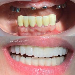 4 PD Ricostruzione dell'intera bocca nel