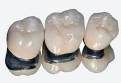 Corona in Metalo-ceramica. Union Dental Tirana