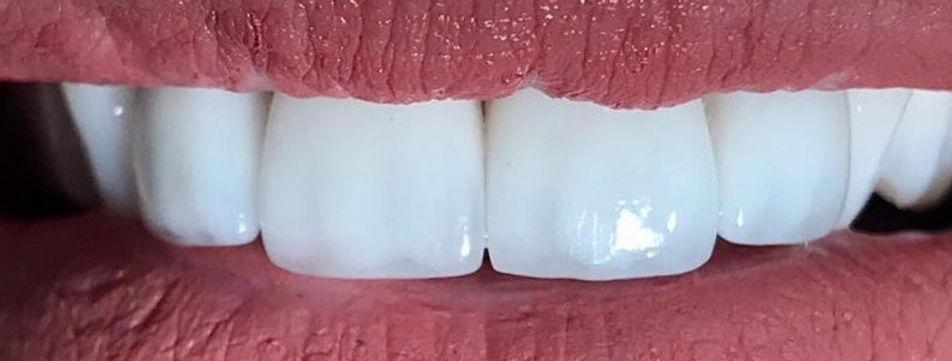 Dentisti Albania Corona Dentale.Tipi di corone, materiali,vantaggi e costi