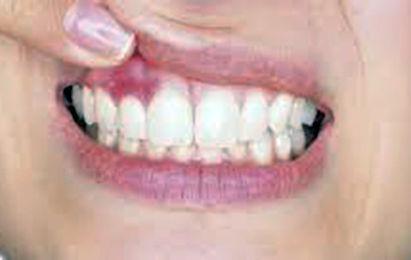 Parodontologia. Cura della piorrea
