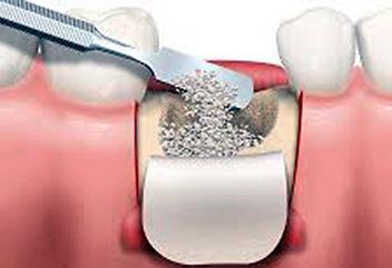 Dentisti Albania. Rigenerazione ossea.Aumento osseo.