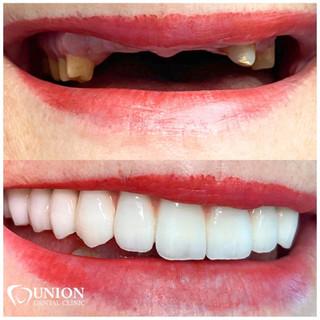Protesi dentale arcata superiore