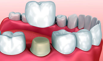 Corona dentale. Union dental Tirana