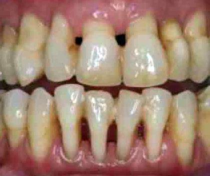 I sintomi della parodontite