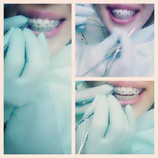 Dentisti Albania Ortodonzia, Invisalign