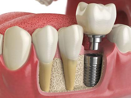 Dentisti Albania. Impianto Dentale. Le tecniche applicate.