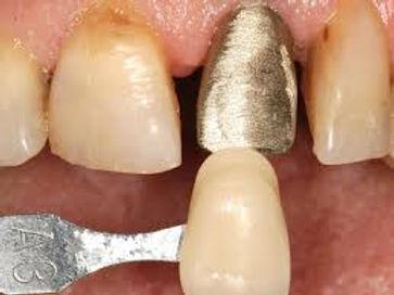 Corona Metalo-Resina. Dentisti Albania