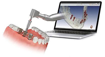 Implantologica compiuter guidata. Dentisti Albania