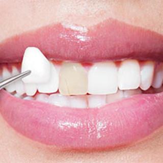 faccette-dentali.jpg