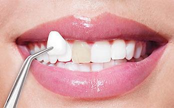 Faccette dentali. Union dental Tirana