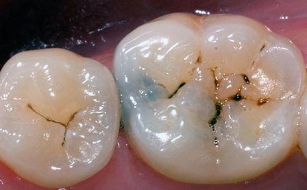 Carie dentali. Union dental Albania