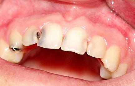 Endodonzia. carie dentaria. Dentisti Albania