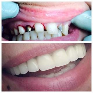 Dentisti Albania. Protesi dentale (prima