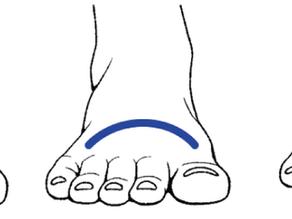開張足・外反母趾は靴・インソールで対策