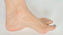 ハイアーチは足と靴の隙間を埋めるインソールで足圧分散を