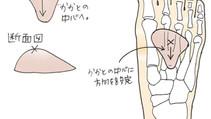 開張足・外反母趾にオススメしたい!100均インソールでもできる横アーチパットの設定