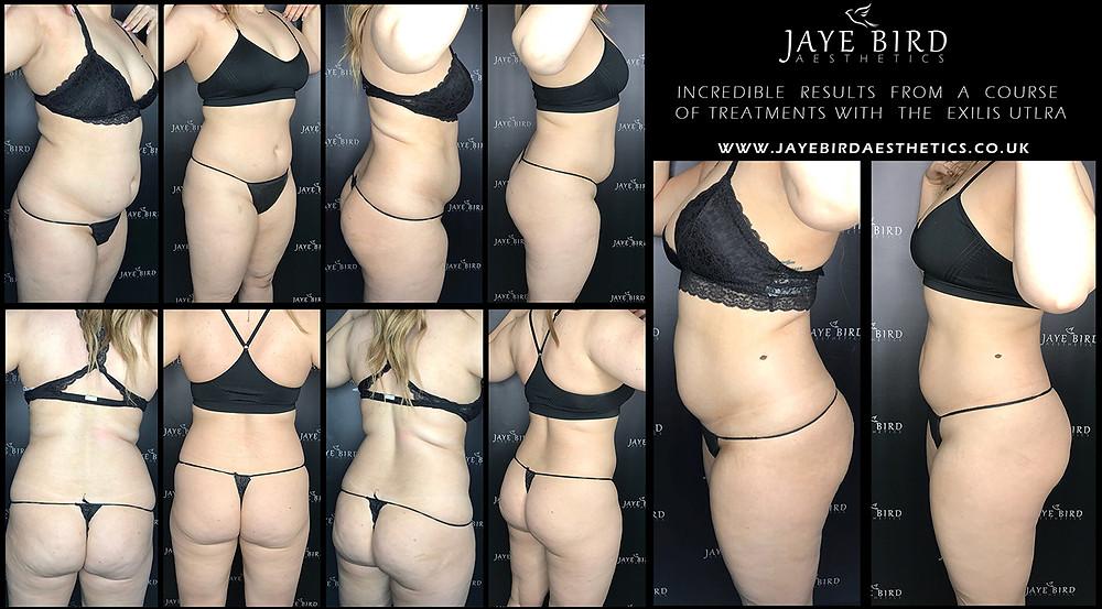 Exilis Fat Reduction Skin tightening Jaye bird aesthetics
