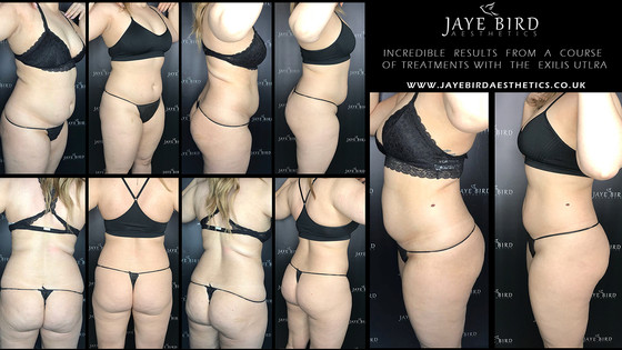 Incredible Results - Exilis Ultra Femme 360