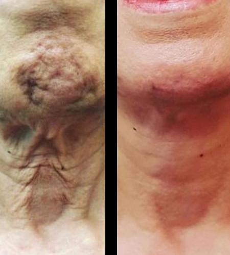 Neck Wrinkles & Sagging - Before & After