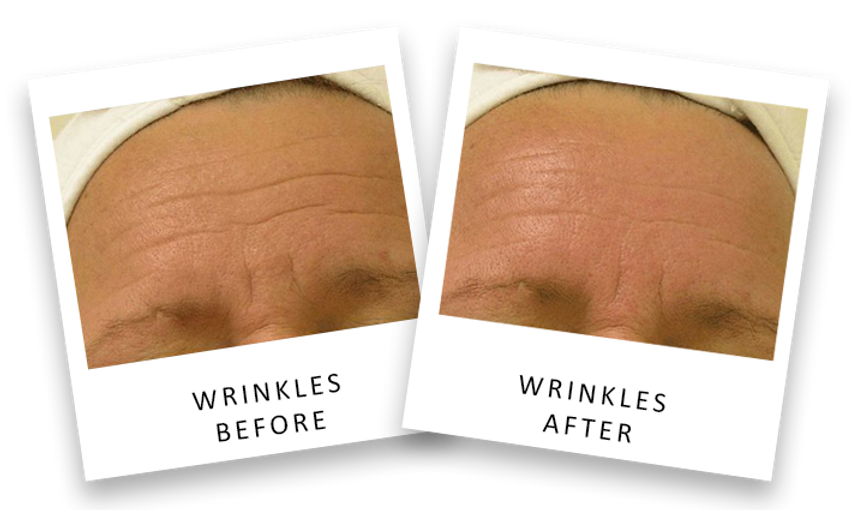 smoother skin anti aging wrinkle reduction