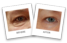 Dermaplaning, ZO Skin Care, Wrinkles reduction, anti-aging