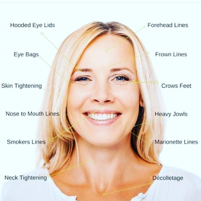 Facial anti wrinkle skin tightening