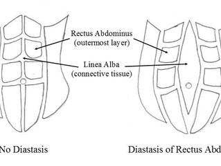 Diastasis Recti: Prevention and Treatment
