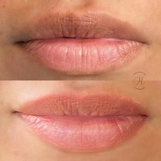 Dark Lips Correction.jpg