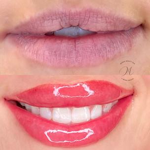 dark lip neutralization.jpeg