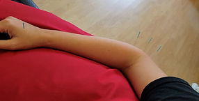 acupuncture anglesey physiotherapy