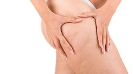 Celulite e Retenção de Líquidos